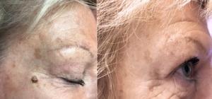 före och efter fibrom borttagning